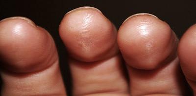 Desenvolver calos nos dedos para tocar violão