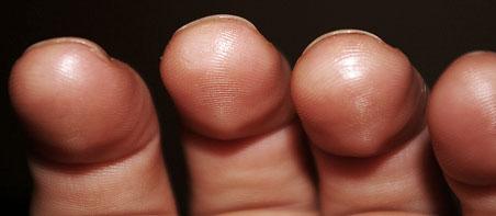 fortalecimento dos dedos